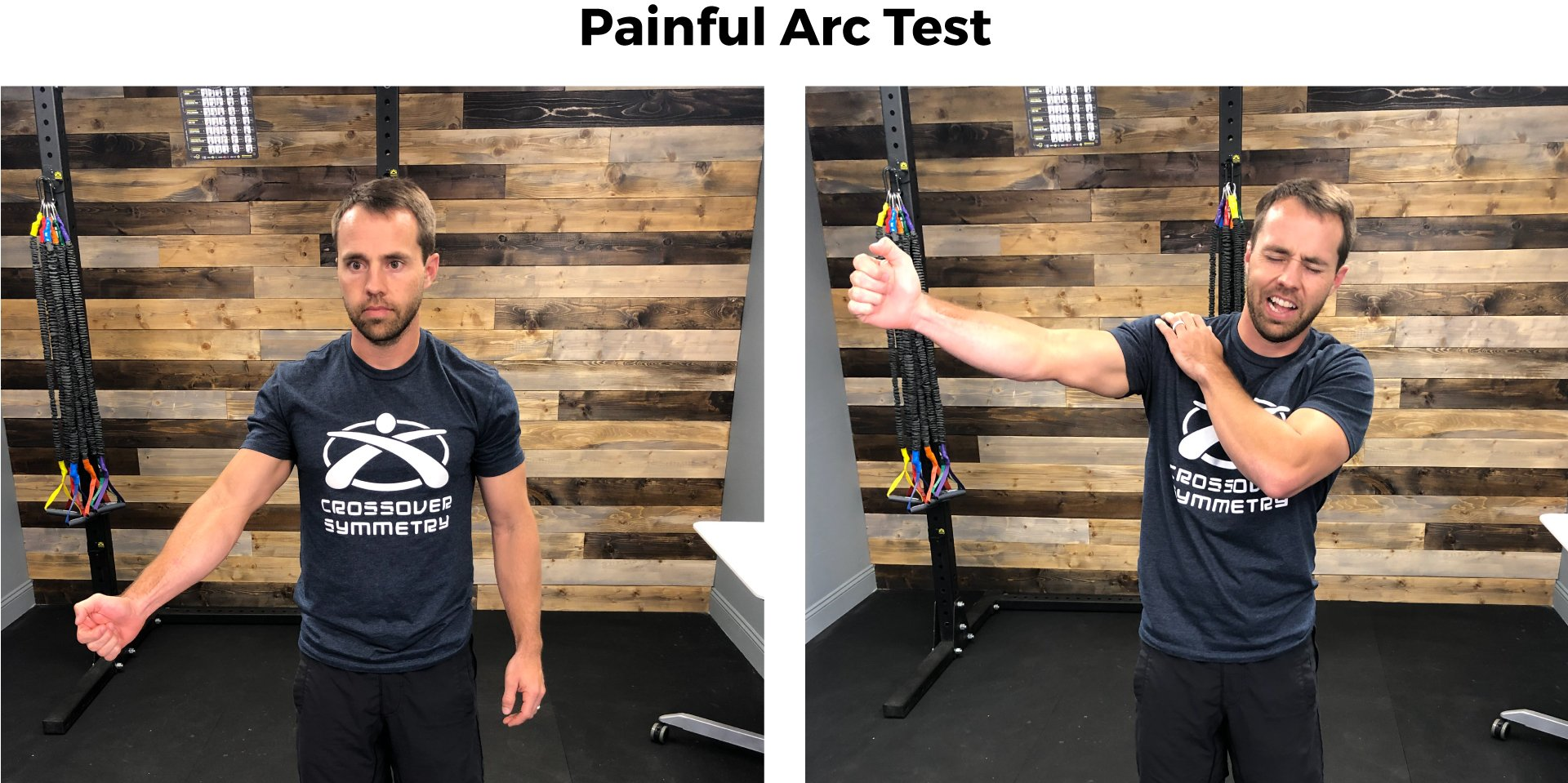 Shoulder impingement test painful arc test